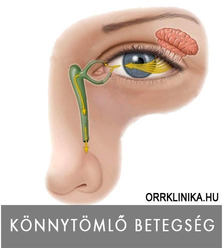 a szervezetben élő helminták tünetei felnőtteknél)
