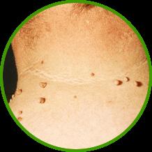 leve a vastagbél méregtelenítésére peritoneális rák ritka