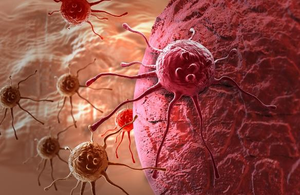 Az életmód fontosabb colorectalis rákban, mint a genetika