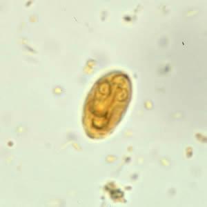 a paraziták megszabadulnak a férgektől vastagbélrák egyensúly d kiterjesztés