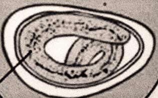 ostorbaktériumok azaz