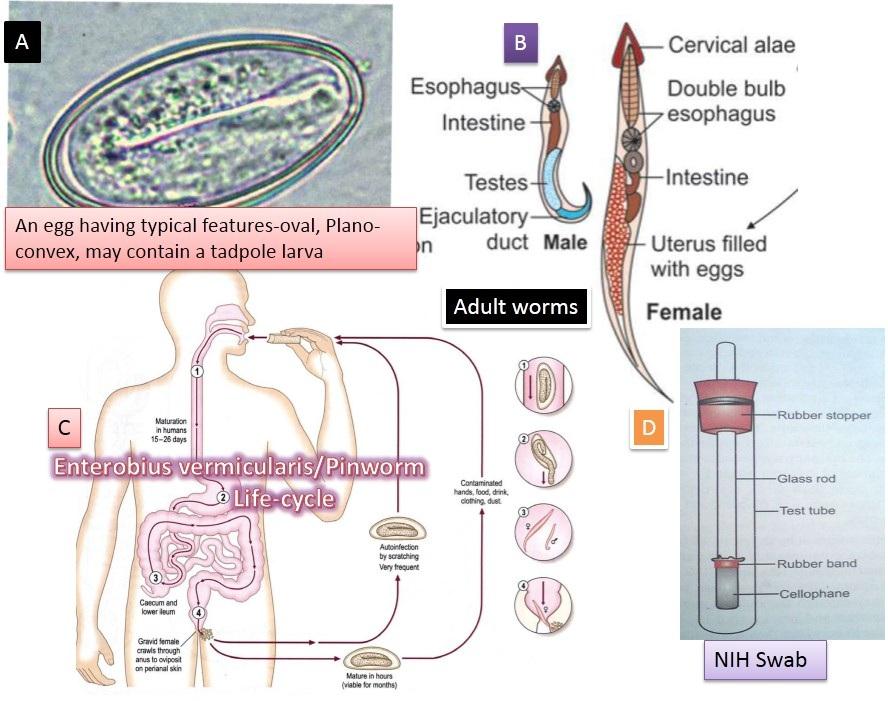 Pinwormok és roundworms felnőtteknél tünetek Pinwormok és roundworms hogyan kell kezelni őket