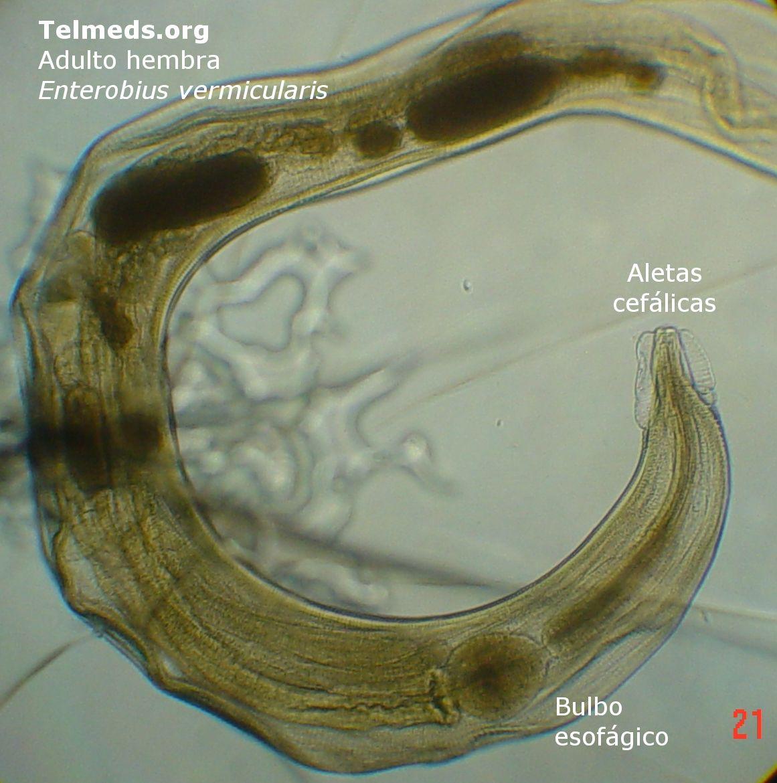 Klinikai útmutatások az enterobiasis kezelésére, Enterobius vermicularis cernagiliszta pete merete