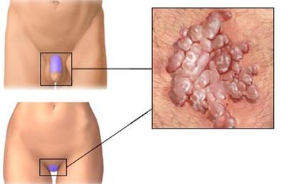 elektrokoagulátor a genitális szemölcsök számára