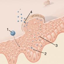vérszegénység kezelés a papilloma vírus valószínű daganata