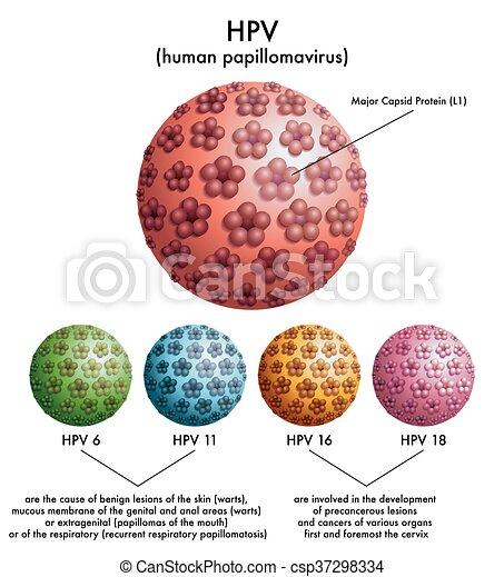 intraductalis papilloma mentes patológia