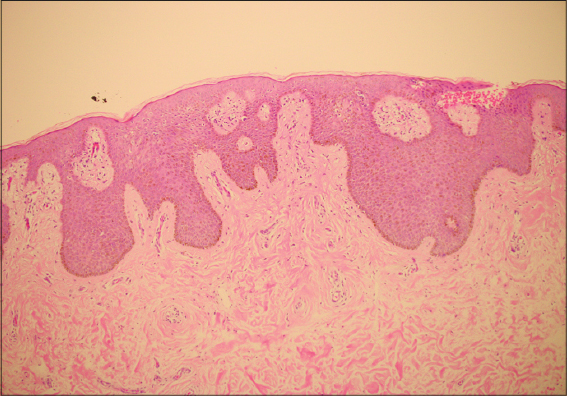 Tüdőrák zárójelentés (jelige: T2NxM1a)