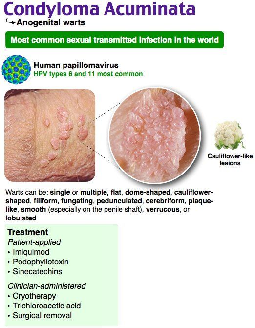 szarkóma rák amputáció