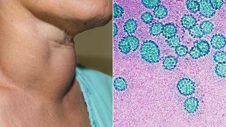 hpv rák prevalenciája