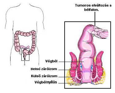 Paracelluláris kezelés paraziták ellen