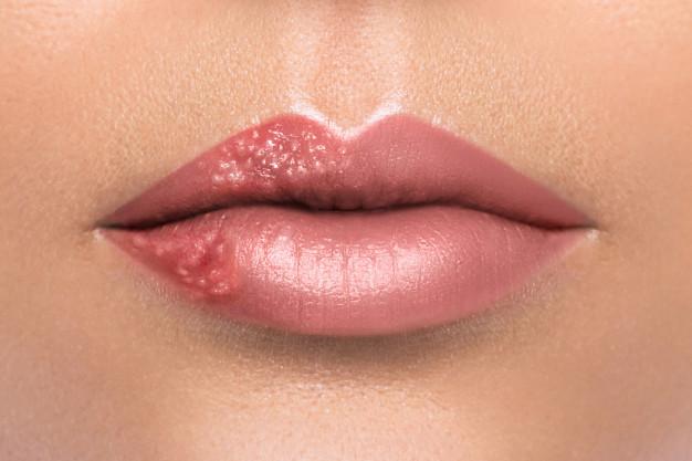 Herpeszvírus-fertőzés: ki kapta kitől?