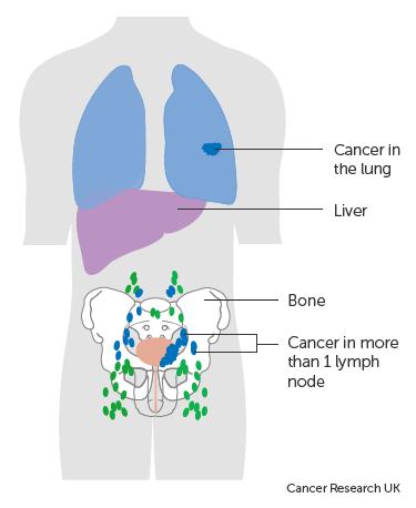 A húgyhólyag Rhabdomyosarcoma