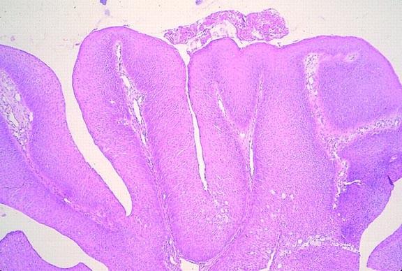 hpv teszt ferfiaknal a condyloma gyógyulása
