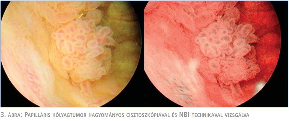 Húgyhólyag daganatok   Hungarian Oncology Network - carbocomp.hu