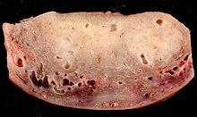 endometrium rák vagy adenomyosis
