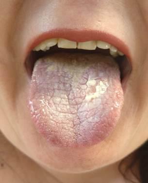 pikkelyes papilloma a nyelv kezelésénél