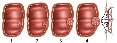 hpv kezelés terhesség esetén
