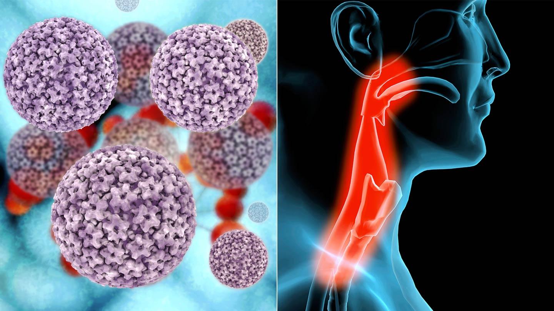 hpv a rák előtti tünetek