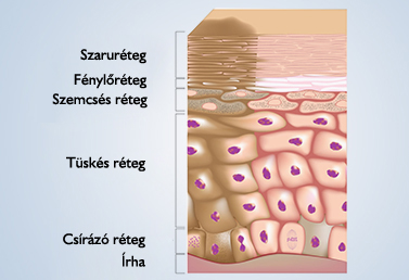 allergiás kontakt dermatitis