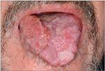 a genitális szemölcsök tünetei a nyelven