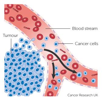 a peritoneális rák kiújulásának aránya húgycső rák prognózisa