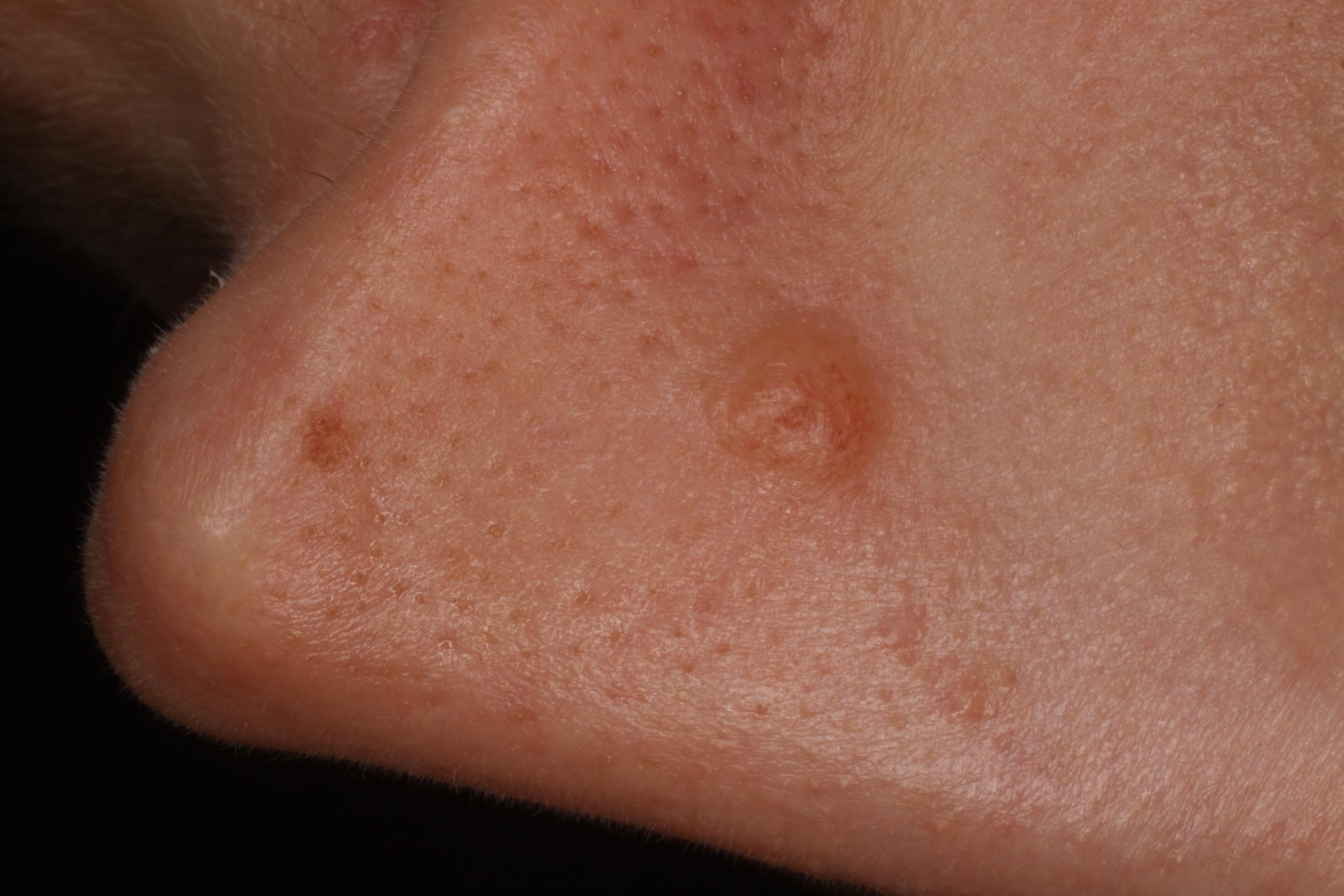 ahol az arcon lévő papilloma eltávolítható