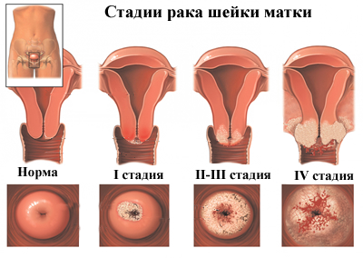 Plázs: Miért öl meg a rák?   carbocomp.hu