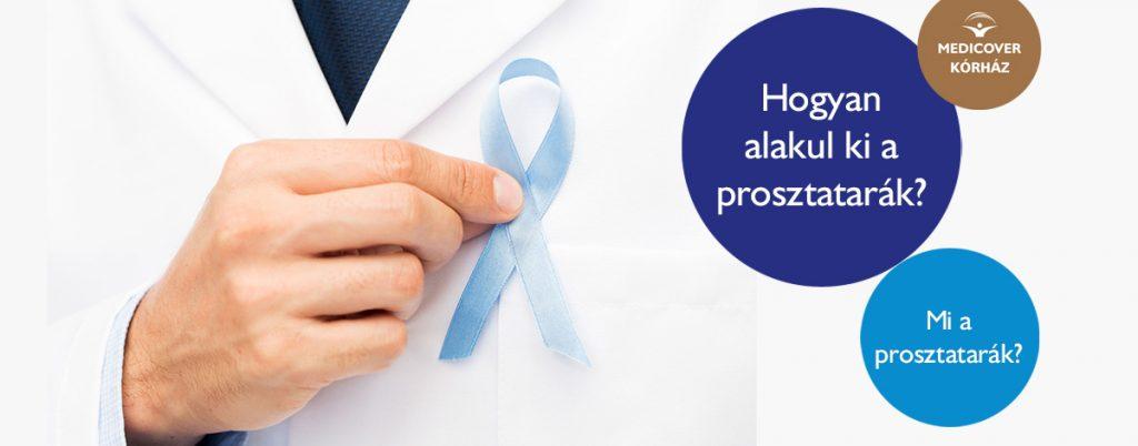 Hormonterápia: növekvő túlélési esély prosztatarák esetén - HáziPatika