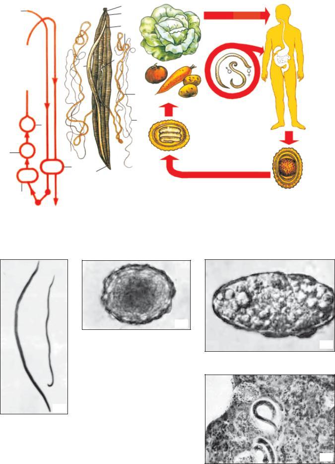 parazitológia trichocephalosis bolhák és férgek komplex kezelése