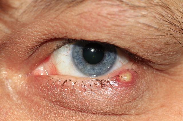 A szemhéjat érintő tumorok