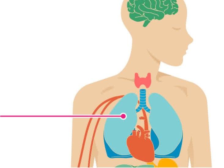 baktérium klebsiella pneumoniae tünetei jóindulatú rák rákos