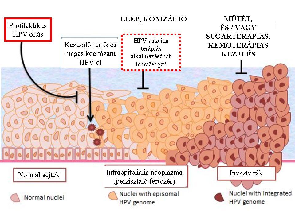 hpv típusú rák égő a lábujjak kezelése között