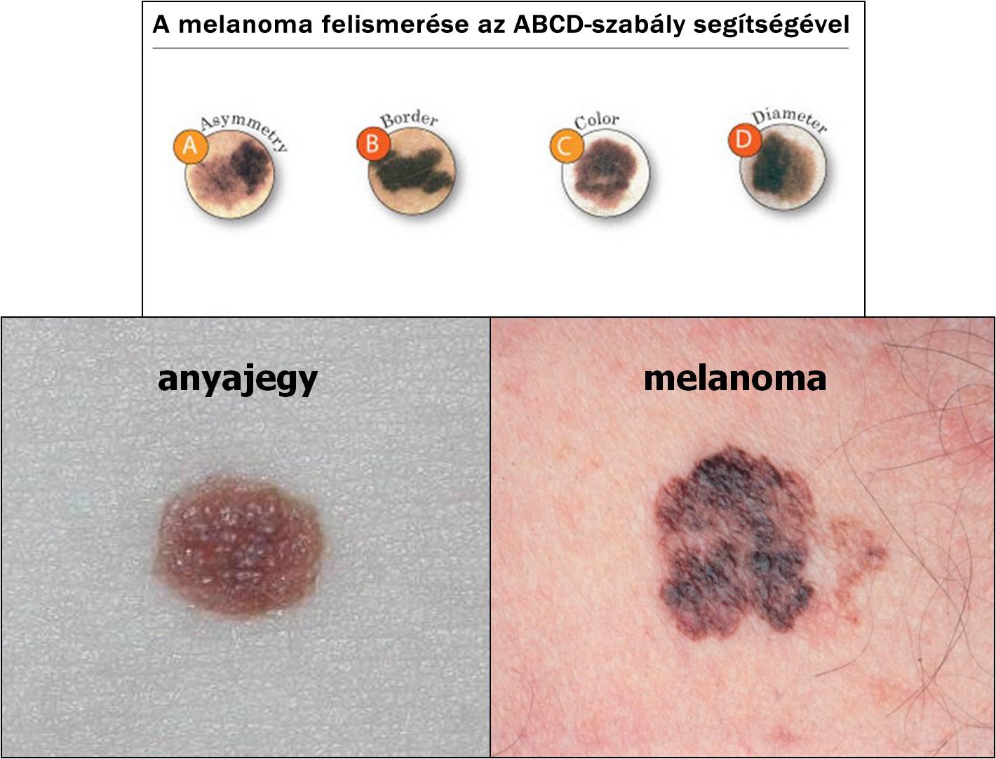 bőrrák kialakulása neuroendokrin rák immunterápia