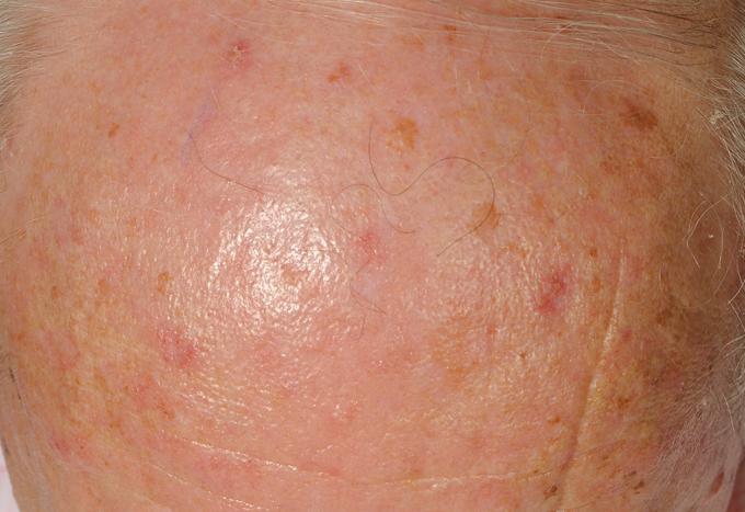 bőrrák kialakulása condyloma lehetséges