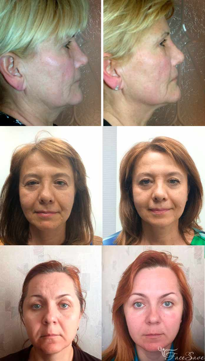 papillómák az orr kezelésében)