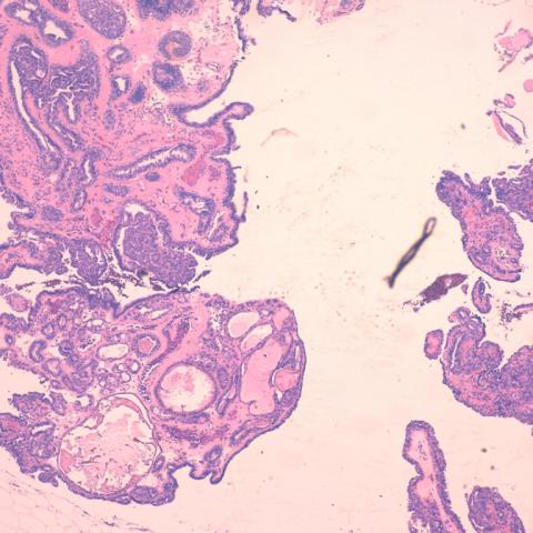 intraductalis papilloma hyperplasia az echinostome parazitái