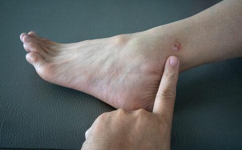 Csúnya, de gyorsan búcsúzó betegség az ótvar - Blog