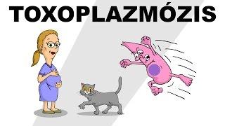 Toxoplasma fertőzés