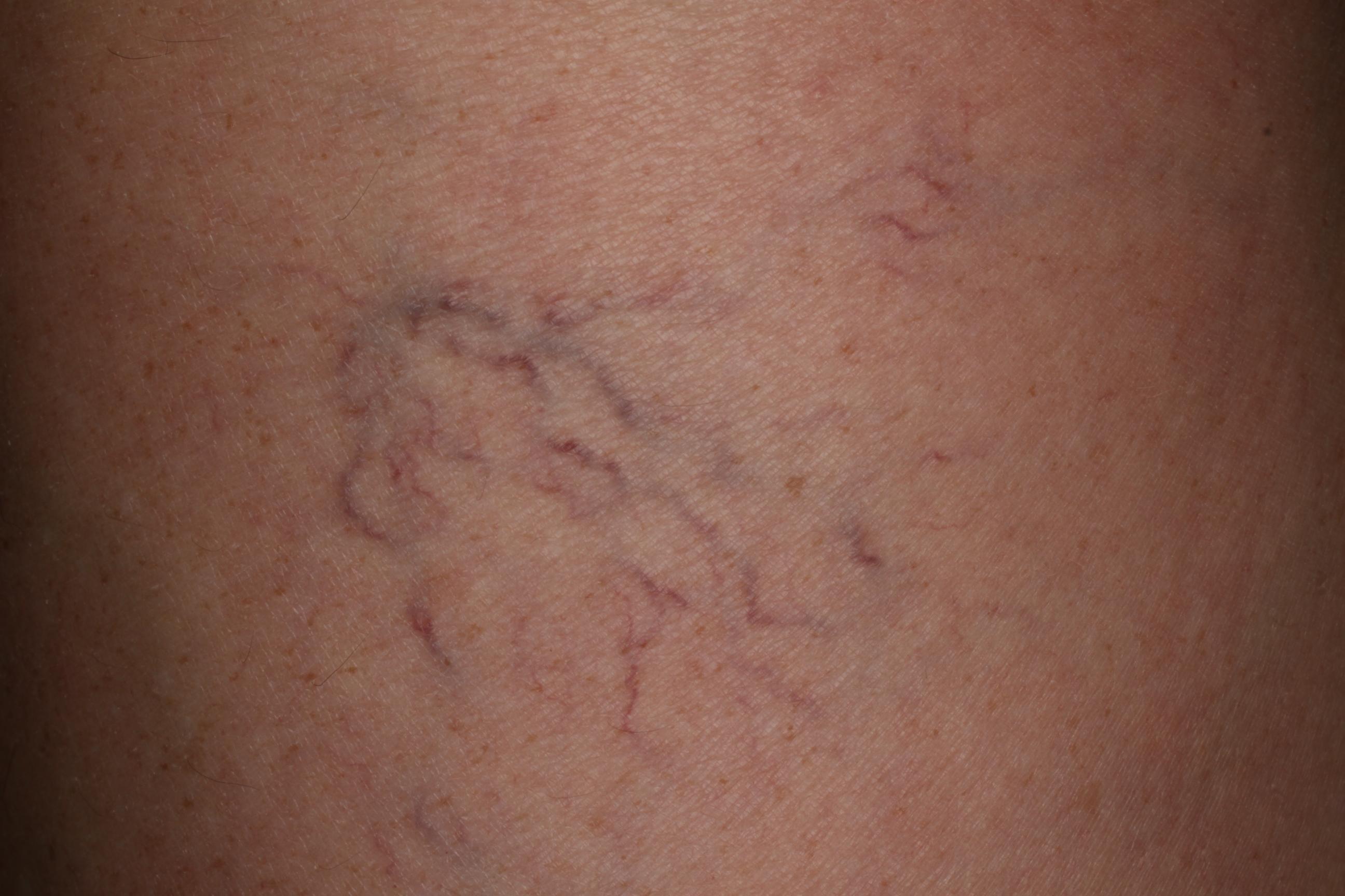 anyajegyek eltávolítása fagyasztással baba arc dermatitis