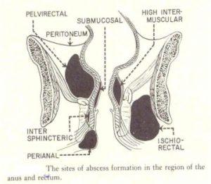 condyloma polipok a végbélnyílásban