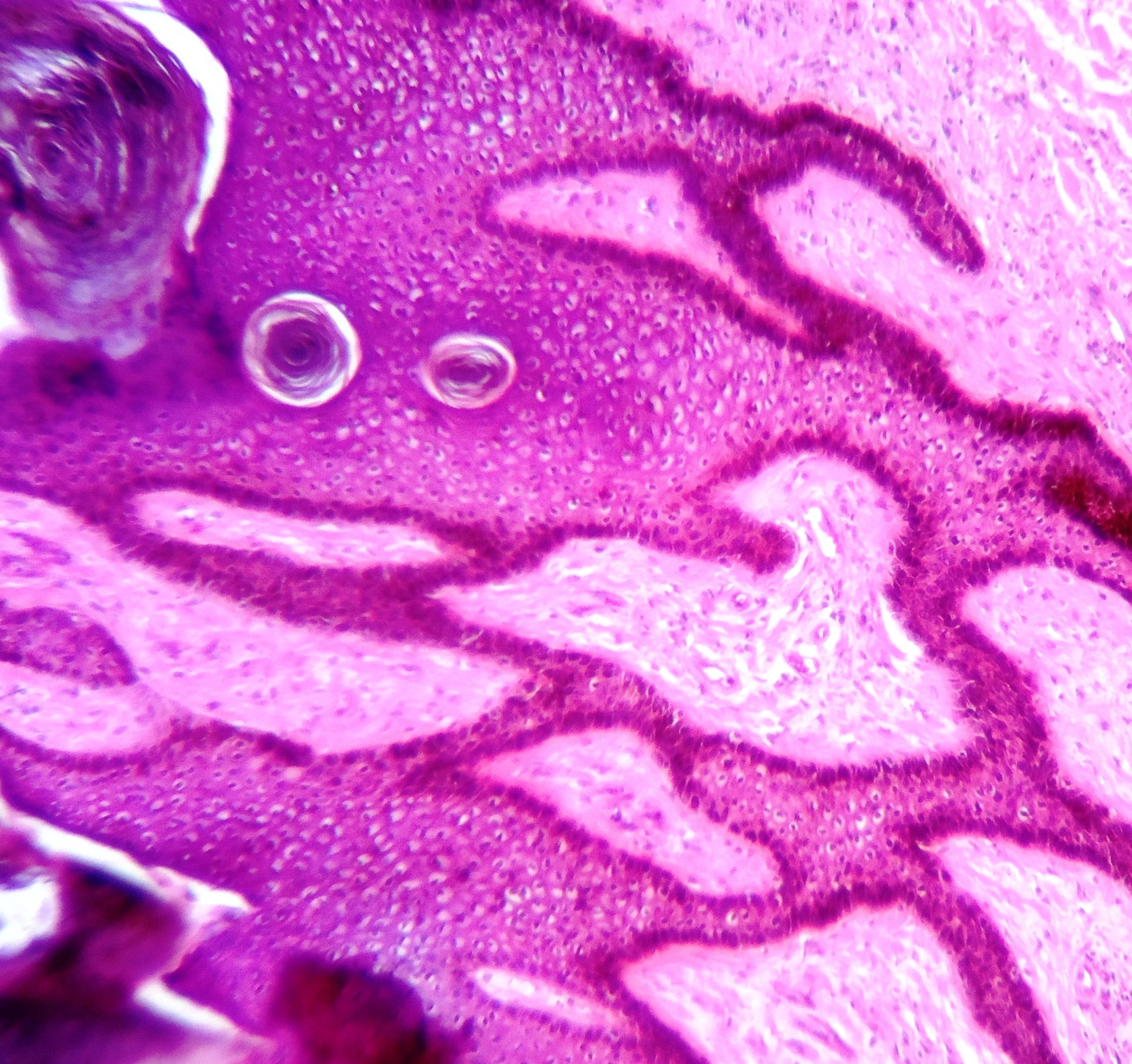 Nyaki papillómák: okok és kezelés. - Lipoma
