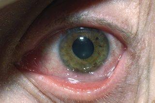 enterobius vermicularis megtalálható a vizeletben