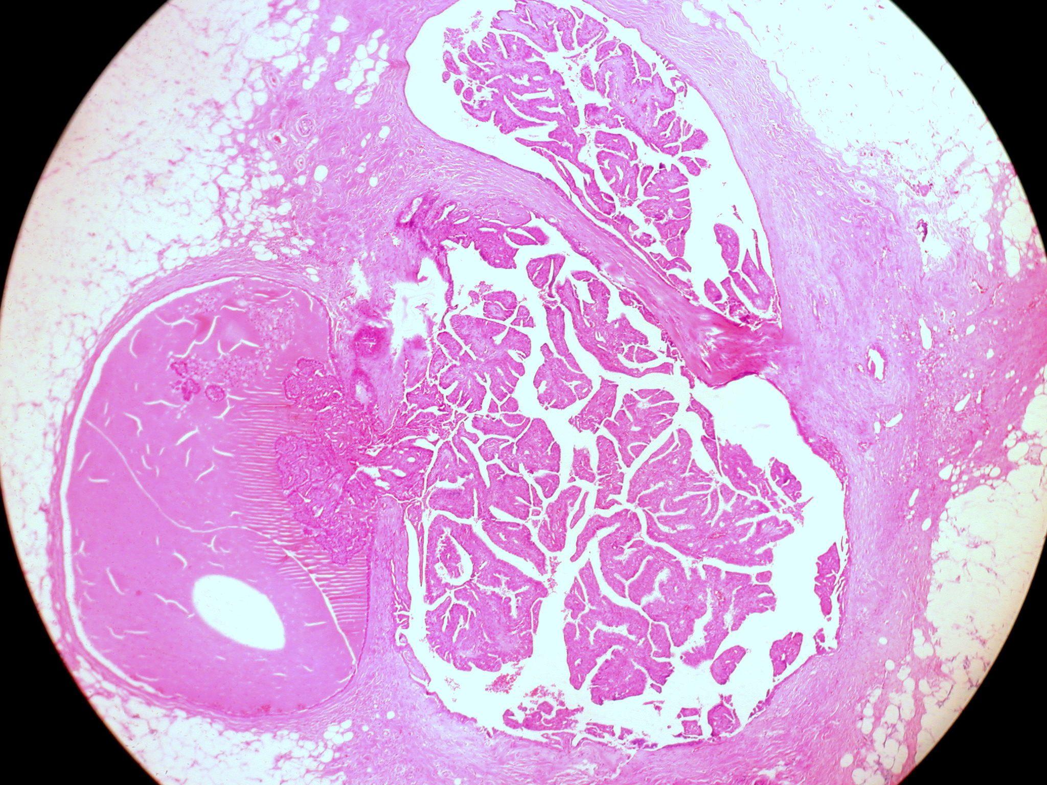 Az emlőelváltozások vékonytű biopsziája - carbocomp.hu