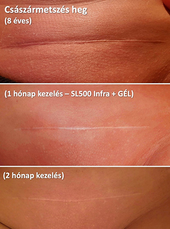 dermatitis 4 hónap féregszirup