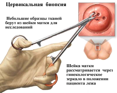 vérszegénység, aki meghatározása szemölcsök vérzik a kezeken