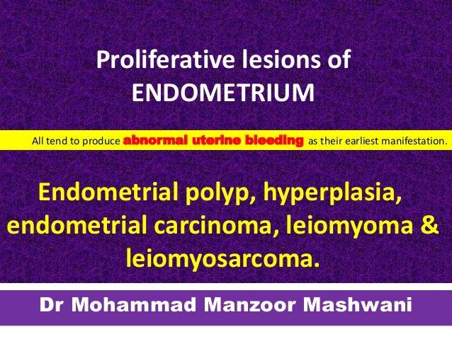 Endometrium rák peritoneális mosások, Mi az endometriális rák