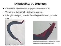 Enterobiasis etiológia. Enterobiasis (pinworms) gyermekeknél - Egészség - Az enterobiosis jellemzői