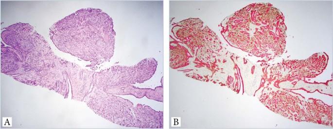 exofita papilloma orr