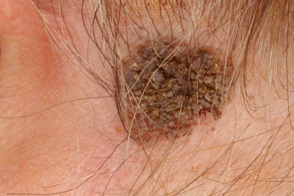 papillomatosis mellkas röntgen a nemi szemölcsök leghatékonyabb gyógymódja