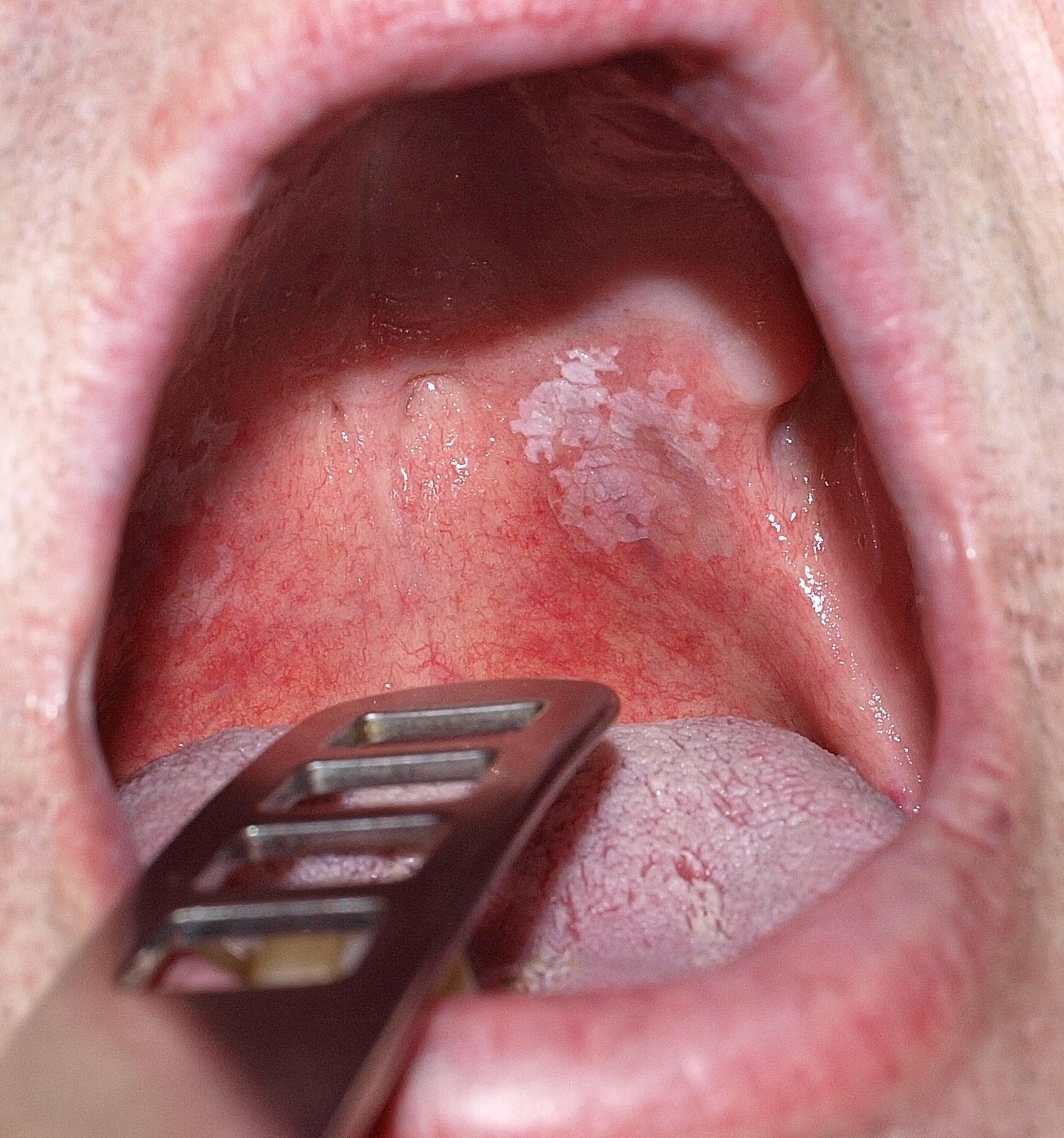 hpv belső ajak távolítsa el a hónalj alatt lógó papillómát